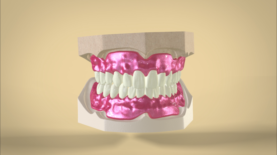 Digital Dentures container digital full dentures 3d printing 83344 png
