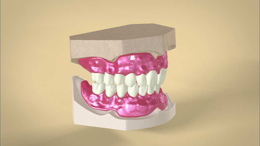 Digital Dentures container digital full dentures 3d printing 83345 png