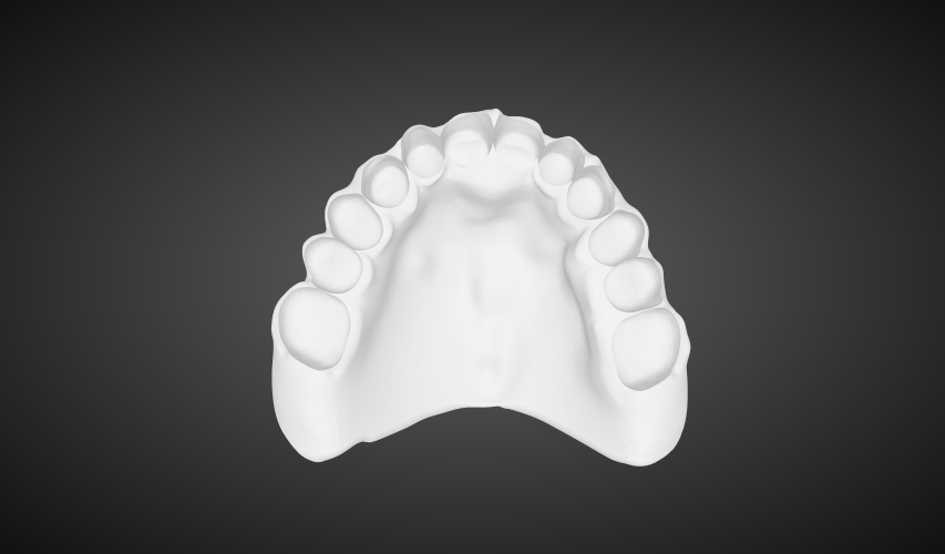 Digital Dentures digital full dentures labmagic 3d cad 20160420 1542 labmagic 3d me4d5a0cd982094ca49f4efe1556849e2d 2 stl png