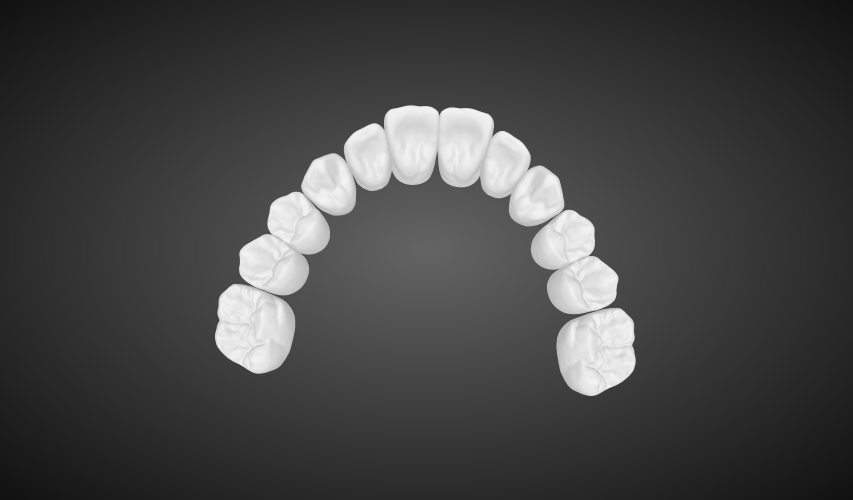 Digital Dentures digital full dentures labmagic 3d cad 20160420 1542 labmagic 3d me6a924c5f367242fc8e2ed8cec5285d95 0 stl png