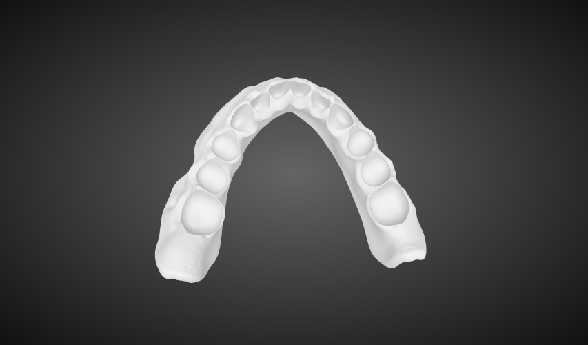 Digital Dentures digital full dentures labmagic 3d cad 20160420 1542 labmagic 3d me7300f430290f4c89bbdd5e7821c9f59c 3 stl png